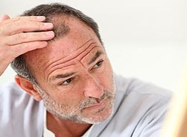 Greffe de cheveux en pratique