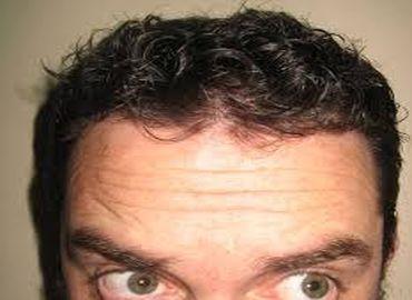 Greffe des cheveux : principes