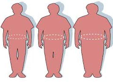 Obésité : que choisir entre anneau, by-pass et sleeve ?
