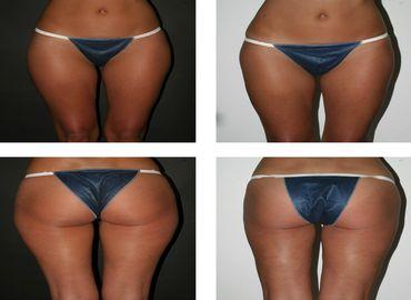 Tout savoir sur la liposuccion