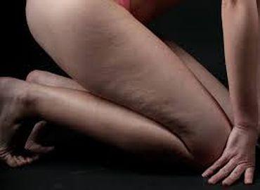 Cellulite : les méthodes non chirurgicales pour les chasser