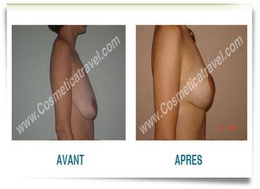 La ptose mammaire après une pose de prothèses : quelles solutions ?