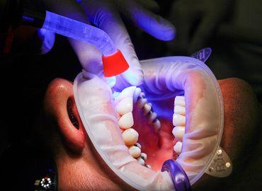 Les avantages des facettes dentaires