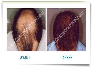 Tout ce qu'il faut savoir sur la greffe de cheveux FUT
