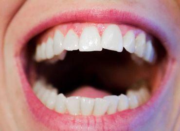 Quels sont les avantages des facettes dentaires Tunisie