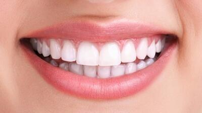 Les immanquables pour une belle dentition