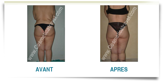 Photo avant apres abdominoplastie