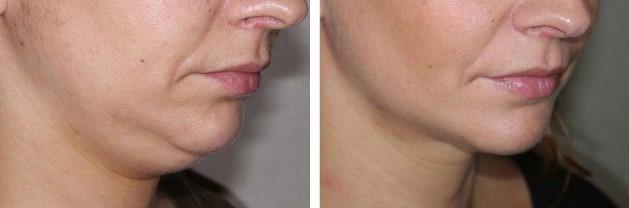 Maigrir du visage: Réduction boules de bichat ...