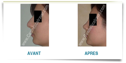 Photo avant apres rhinoplastie